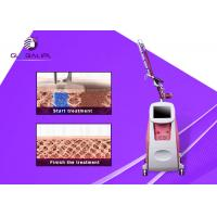 Painless ND YAG Laser Tattoo Removal Machine 1064nm / 532nm Wavelength for sale